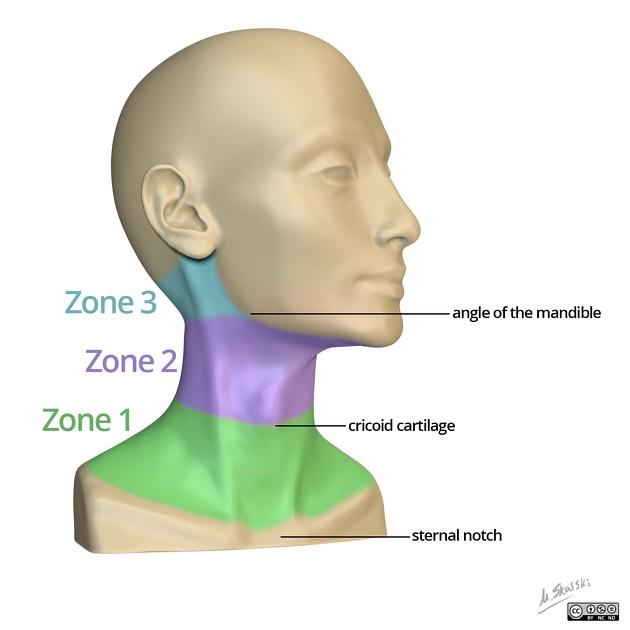 enetrating Neck Injuries - REBEL EM - Emergency Medicine Blog